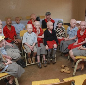 albinos-tanzania-school