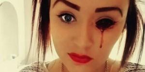 1458057017-marnie-rae-eye-bleeding-top